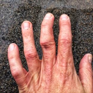 Après trois heures à l'urgence, le doigt était redevenu bien droit. Enflé, mais droit.